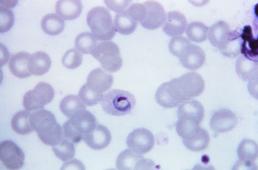 Először látható, hogyan hatol a sejtbe a malária kórokozója