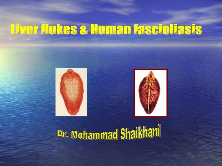 opisthorchiasis fascioliasis