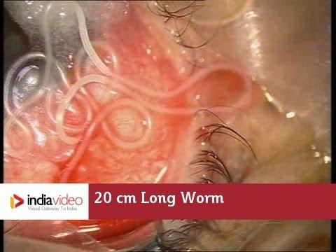 pinworms ascaris tünetei)