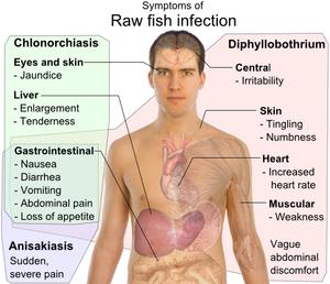 A diphyllobothriasis tünetei emberben és a kezelés - Galandférgek