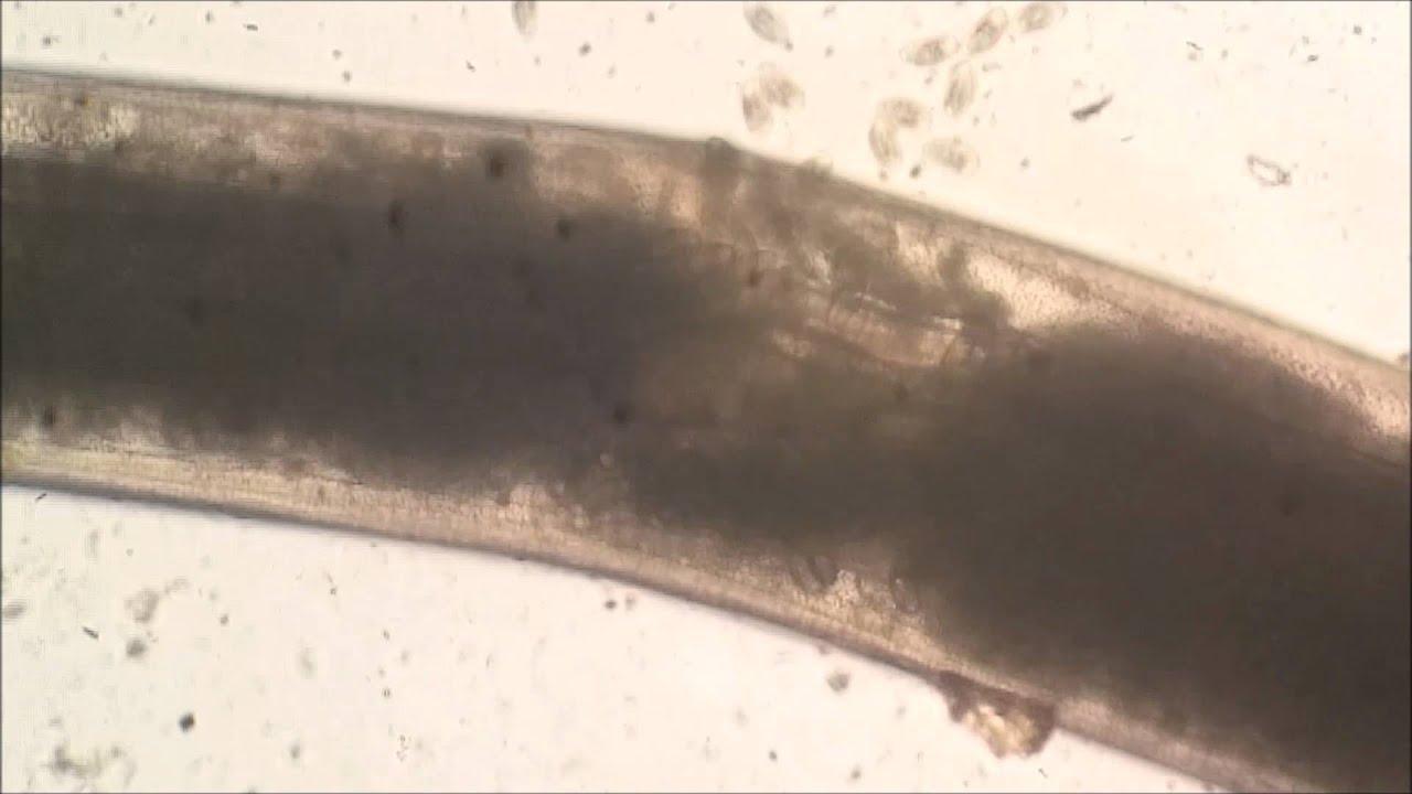 pinworm mellékhatások