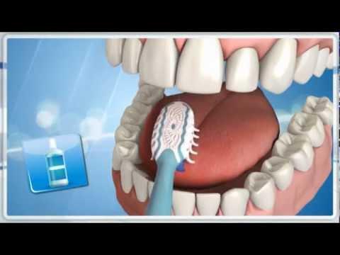 pinworm tünetek okozzák paraziták az emberi testben a giardia kezelésében