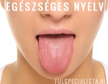 rossz lehelet nyelv)