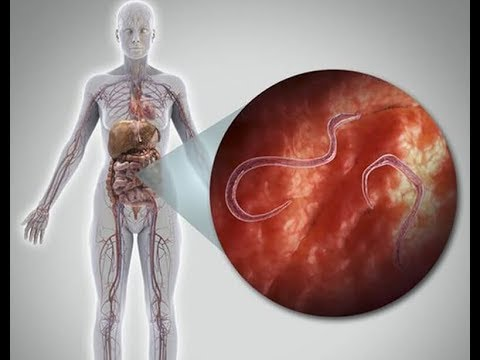 paraziták diagnosztikai módszerei