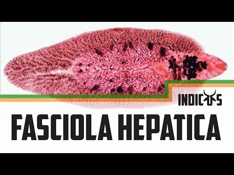a fascioliasis megelőzése