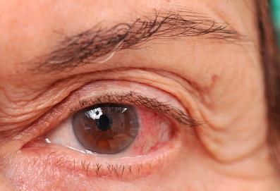 A szem parazita tünetei, Féreg van a szememben! - HáziPatika