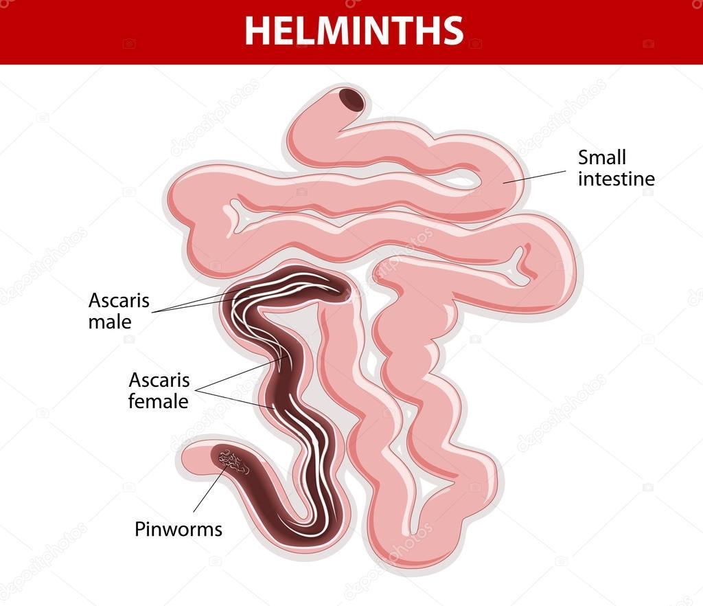 Hogyan lehet felismerni a pinworms et - Ascaris és pinworms tünetek