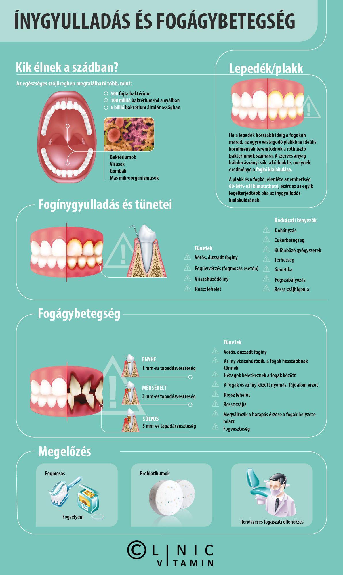 rossz lehelet periodontitis