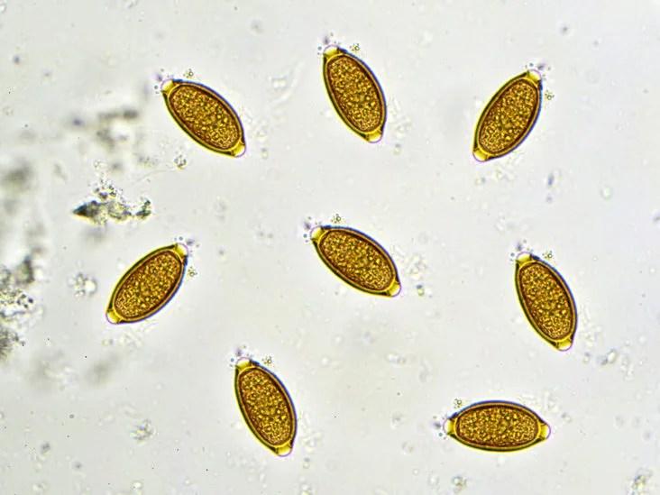a pinworms ascariasis)