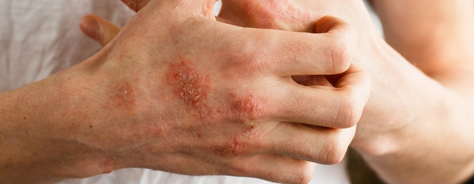 a bőr alatti tünetek kezelése)