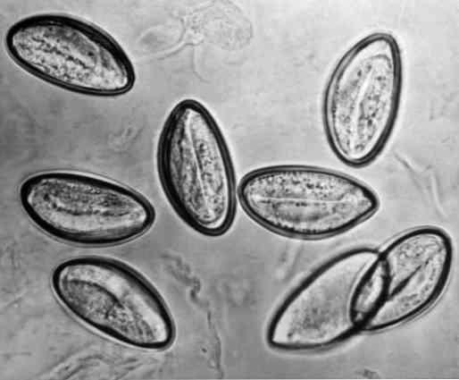 pinworm tünetek kezelése