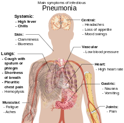 Paraziták, amelyek a tüdőben élnek