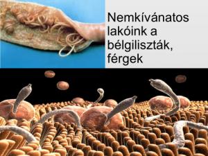 a fürdőszobában élő parazita rossz lehelet, gennyízlés