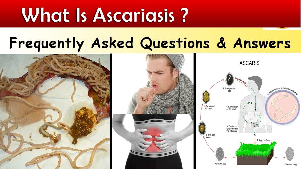 ascaris parazita hogyan kell kezelni