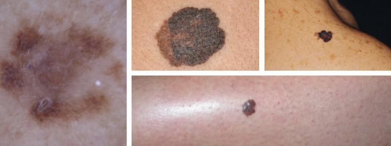 melanoma parazita