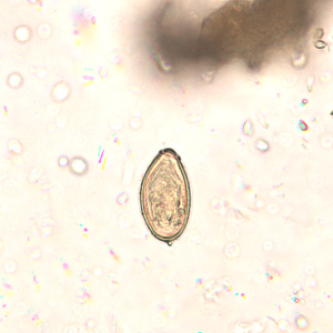 mi a parazita opisthorchiasis)