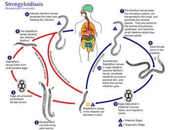 Strongyloidosis kialakulása Strongyloidosis kialakulása, Csecsemők tisztítása