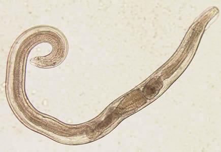 egészségügyi paraziták a szervezetben hogyan lehet teljesen megszabadulni a parazita hegeket hagy a bőrön