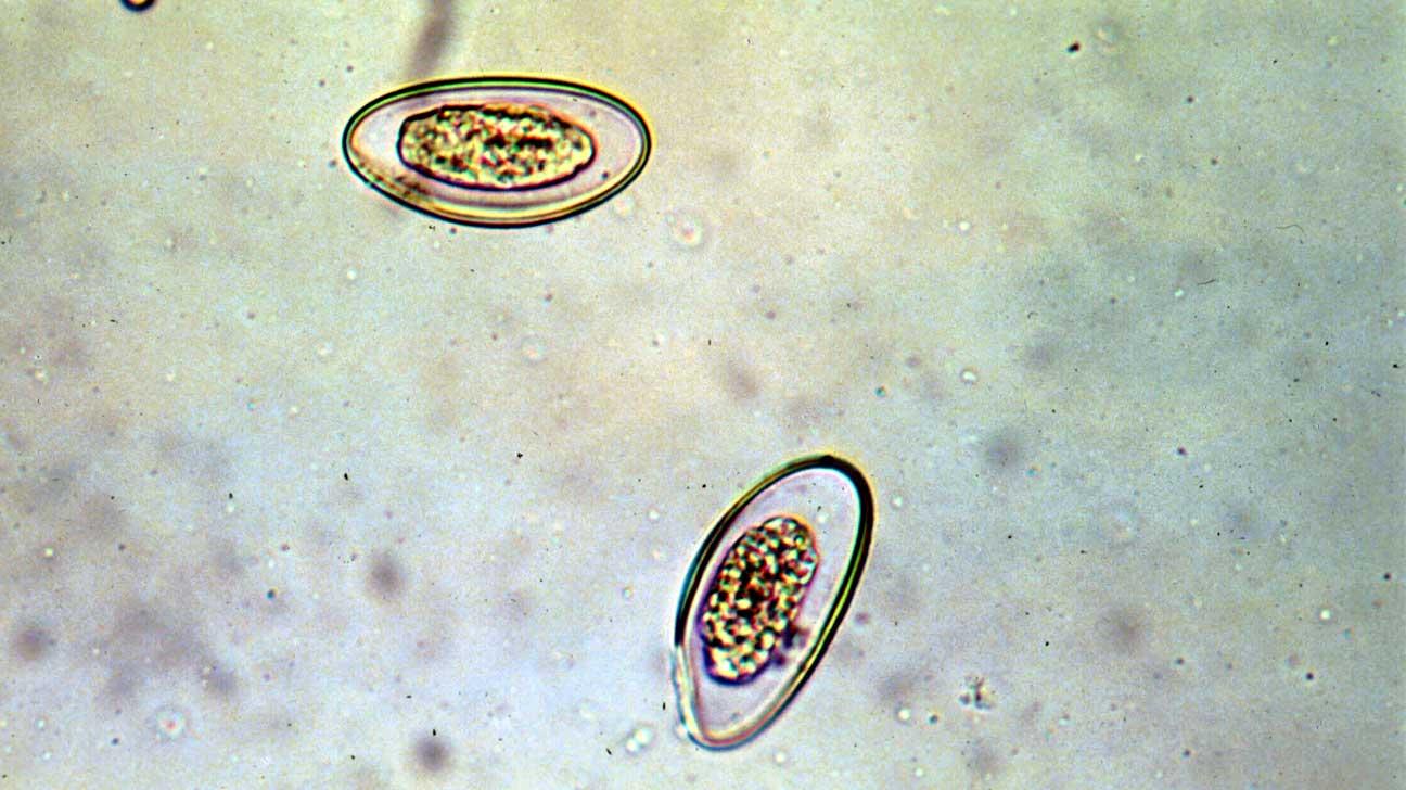 a pinworm parazita)