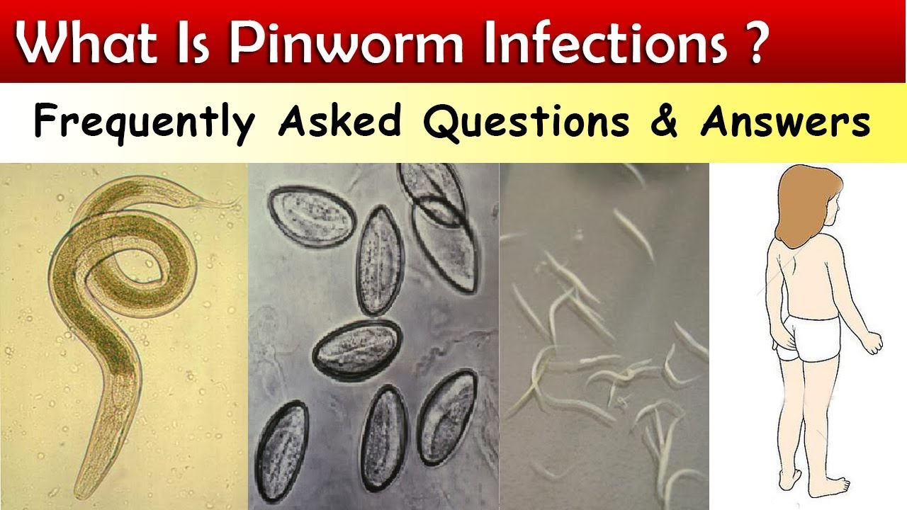 mutasson pinworm tojásokat