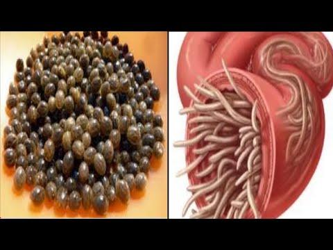 Milyen parazitákat öl Milyen gyógyszer öl meg féregtojásokat. Macska féreghajtó