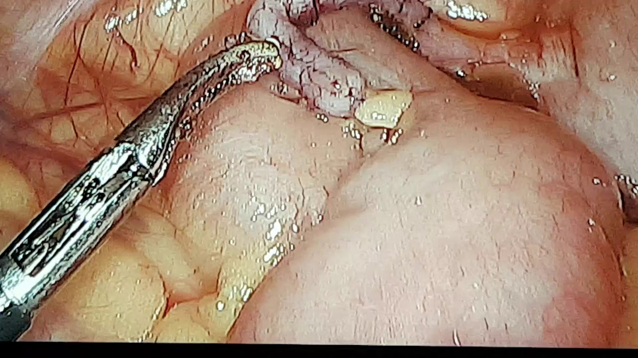 pinworm paraziták helminták