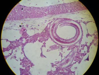 helminthiasis degene nem