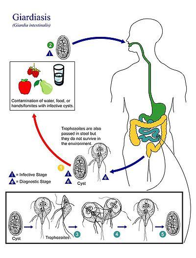 Giardiasis fertozes