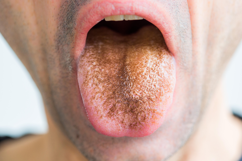 nyelvbevonat és rossz lehelet