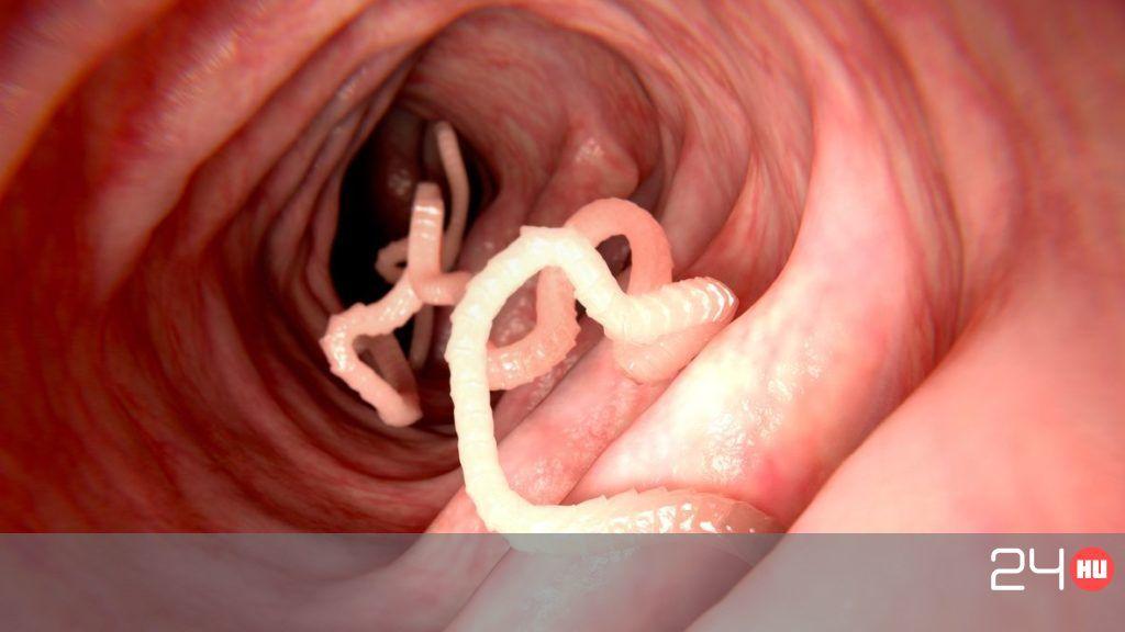 férfi vagy női parazita szaga odeston szaga