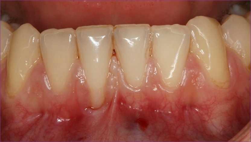 Fogágybetegség és a fogínygyulladás kezelése >> NaturaDent