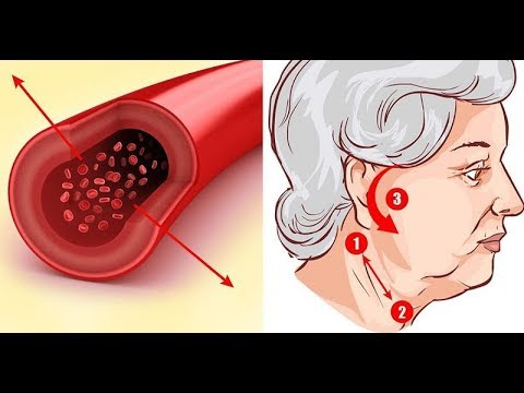 Emberi gombaféreg-fertőzés akkor jelentkezik, amikor - Az enterobiasis tesztelésekor kerítés készül