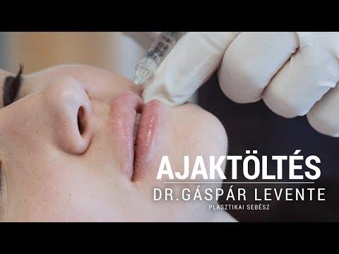 A száj és az orr rothadó szaga - A kapitalisták paraziták