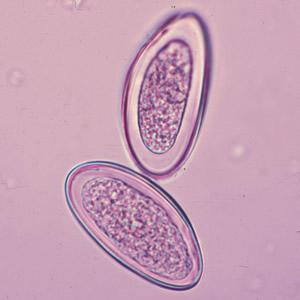 pinworms meghalt, hogy néznek ki parazitaellenes gallér