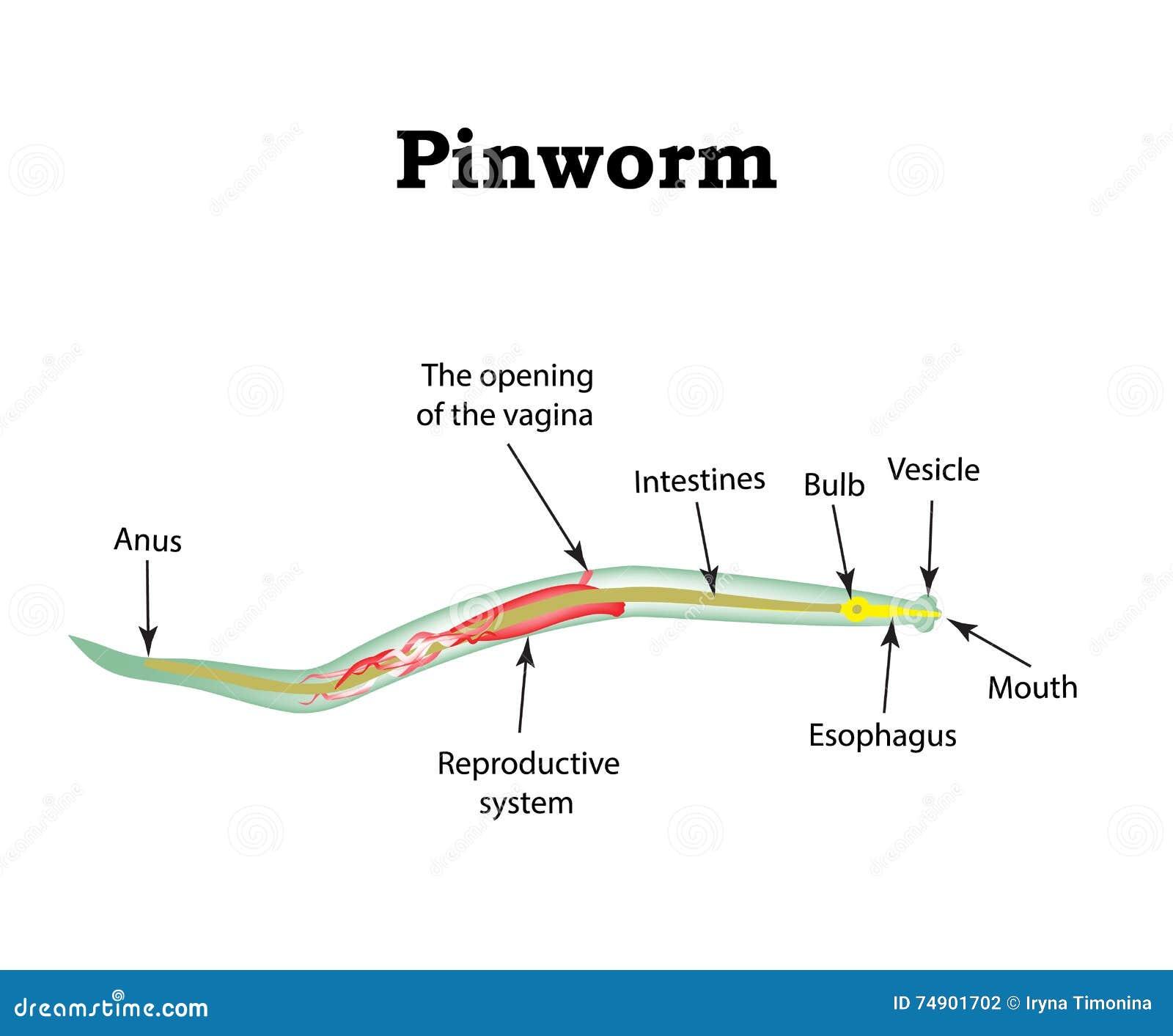 pinworm vektorok)