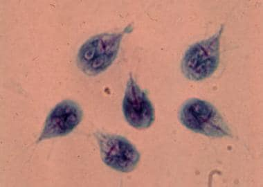 Giardia életciklusa, a Giardiasis jelei és kezelése - Megelőzés December