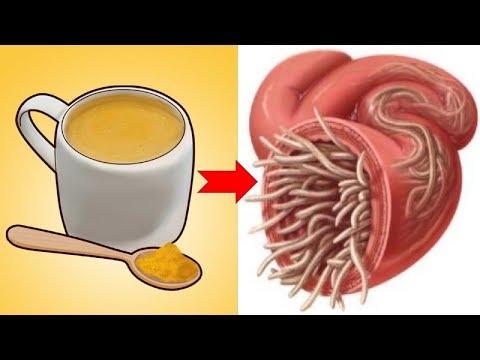 a pinwormok és a roundworms egy és ugyanaz)