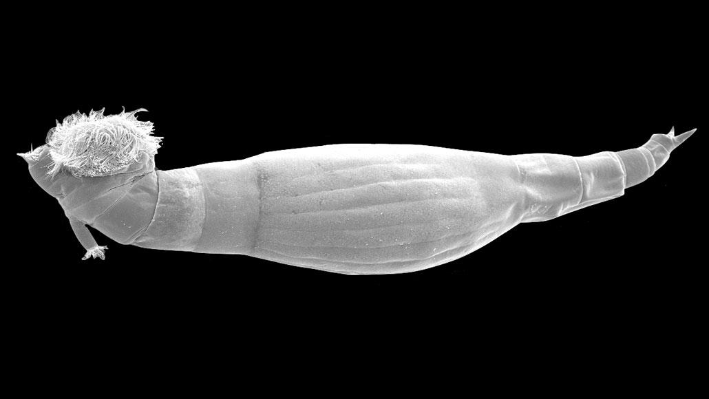 Gyomor- és bélbetegségek Sérv paraziták