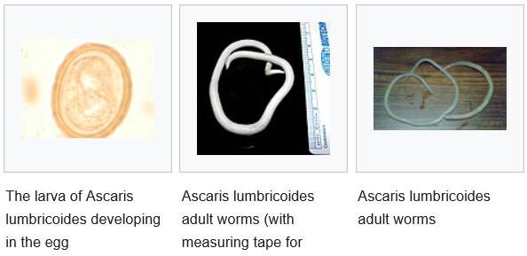 Az aszcariasis tüdő stádiuma