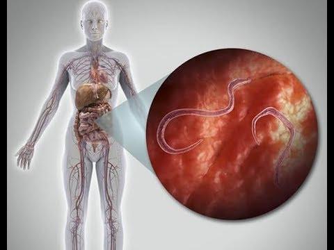 paraziták életjelei a testben