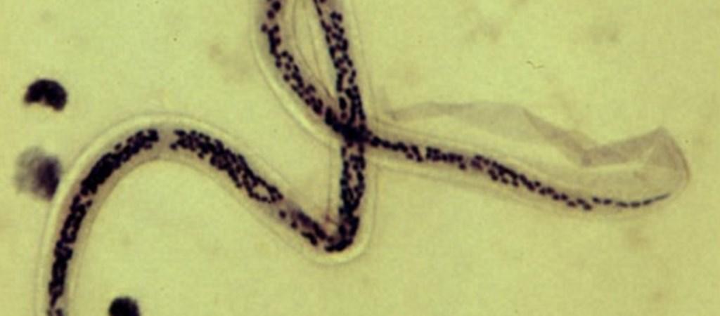 az emberből származó paraziták átterjednek