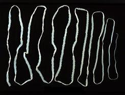 skizofrén parazita paraziták, amelyek az orrban növekedhetnek