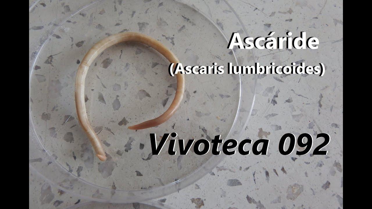 ascariasis mit okoz paraziták, amelyektől a végbél viszket