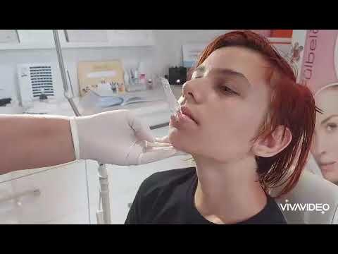 a száj és az orr rothadó szaga)