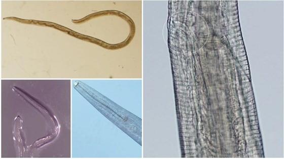 Parazita gyógyszerek komplex kezelése. Bélféreg: okok, tünetek, kezelés