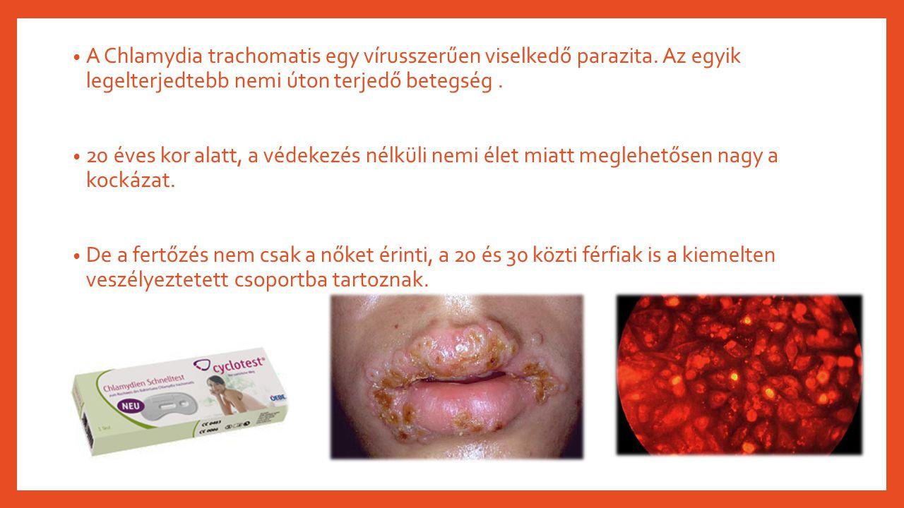 Trichomoniasis: az egyik leggyakoribb nemi betegség
