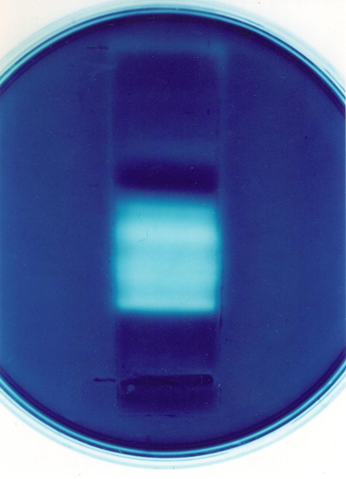 parazita plazmodium