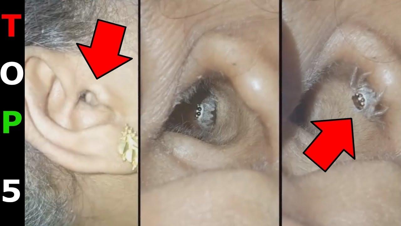 hány pinworm lehet a belekben