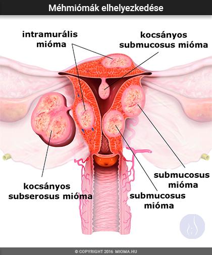 Méh mióma és paraziták