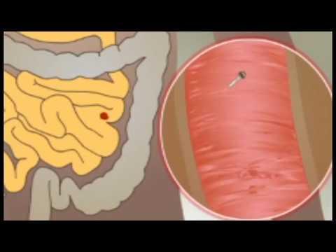 A böjt megszünteti a parazitákat